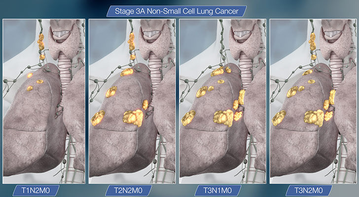 15-things-you-need-to-know-about-lung-cancer_10