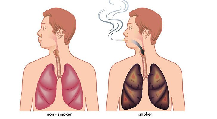 15-things-you-need-to-know-about-lung-cancer_4