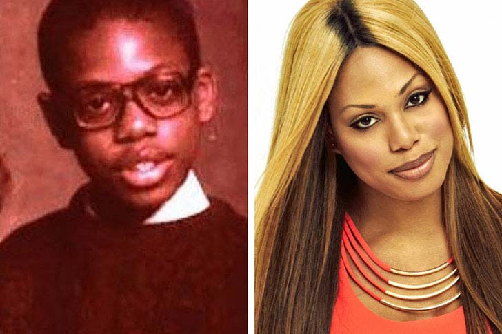 15-transgender-celebs-before-and-after-surgery-will-make-you-speechless_8