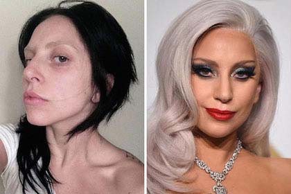 20-jaw-dropping-photos-of-celebrities-without-makeup_14