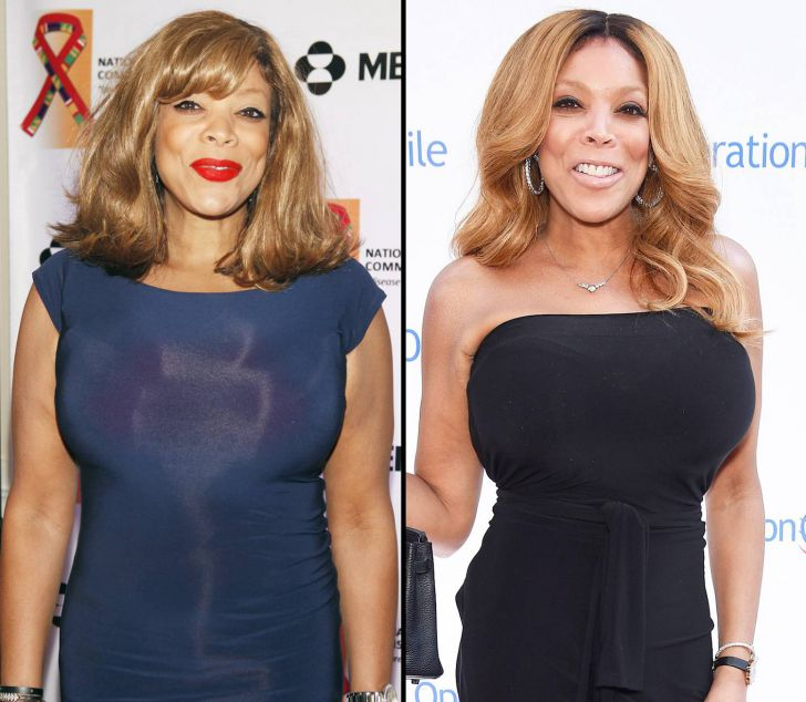 23 Celebrities Before And After Weight Loss_6