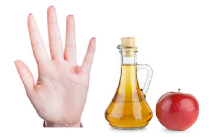 8-apple-cider-vinegar-benefits-that-will-change-your-daily-life_7