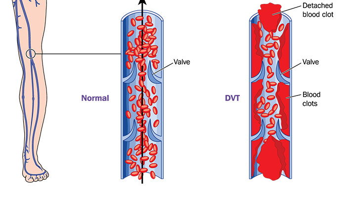 dvt-causes-and-treatments_2