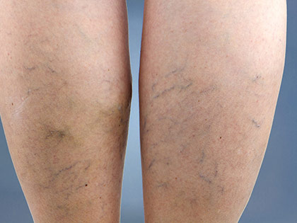 20 Pictures To Demystify Deep Vein Thrombosis And Tell You How To Prevent It